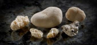 Un complemento dietético podría ayudar a prevenir las piedras en el riñón, según un estudio