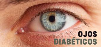 Cuando la diabetes ataque, muévase para reducir el riesgo de los ojos