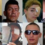 Decenas de jóvenes perdieron sus ojos en las protestas sociales de octubre-2019